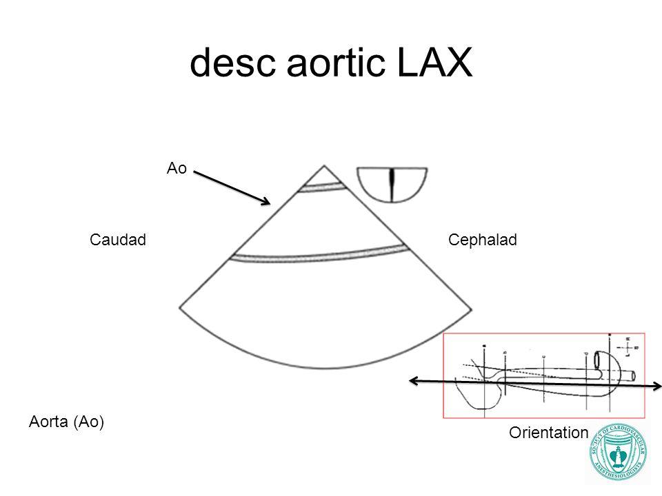 desc aortic LAX Ao Aorta (Ao) CaudadCephalad Orientation