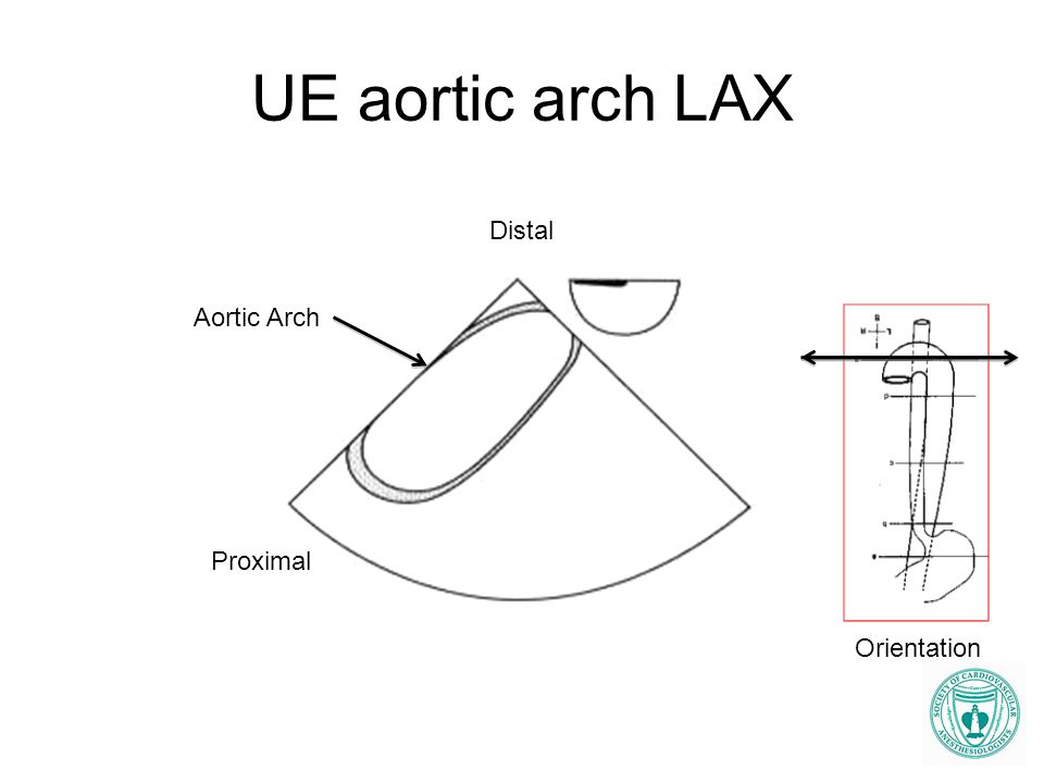 UE aortic arch LAX Aortic Arch Distal Proximal Orientation