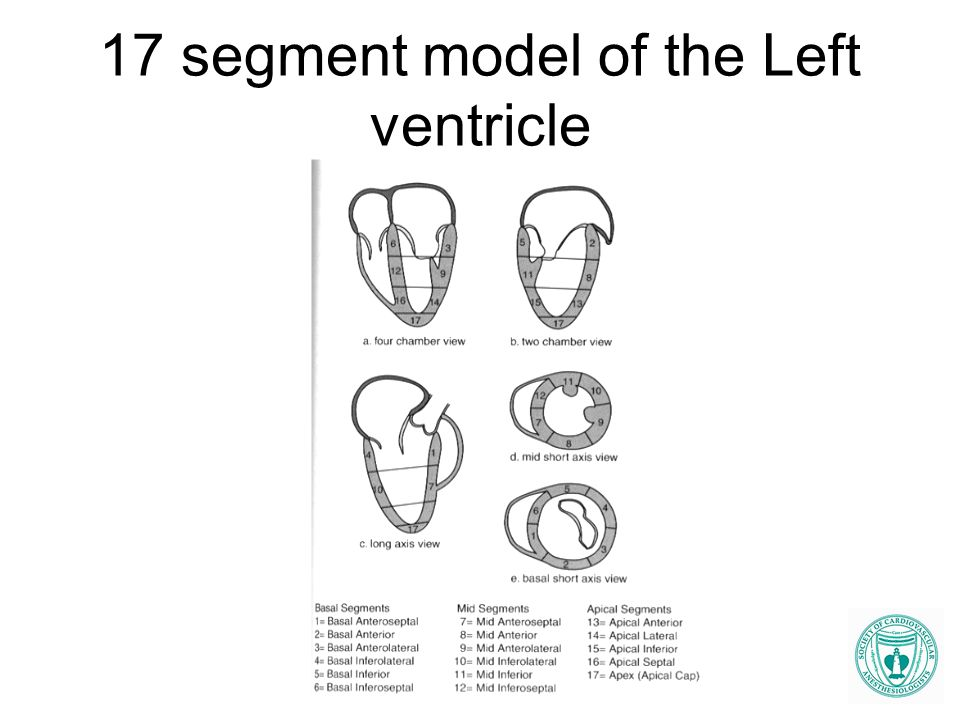 17 segment model of the Left ventricle