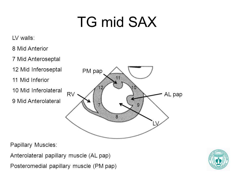 TG mid SAX RV LV PM pap AL pap 7 8 9 10 11 12 LV walls: 8 Mid Anterior 7 Mid Anteroseptal 12 Mid Inferoseptal 11 Mid Inferior 10 Mid Inferolateral 9 M