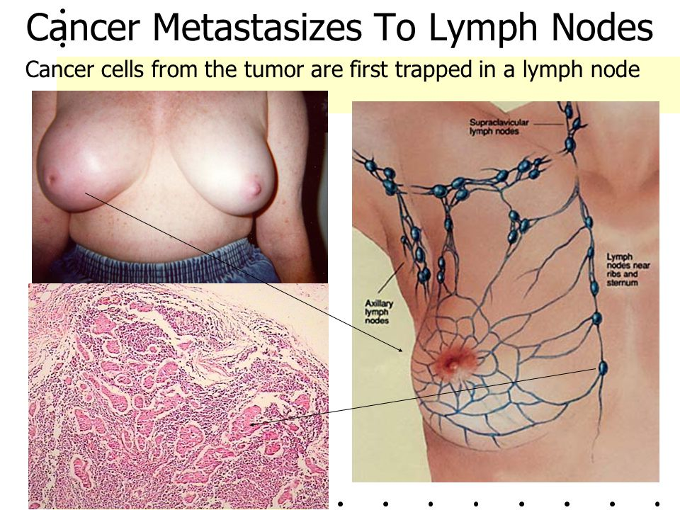 Cancer Metastasizes To Lymph Nodes Cancer cells from the tumor are first trapped in a lymph node
