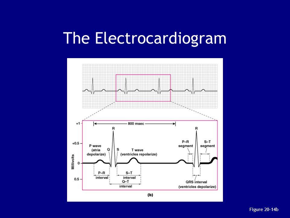 The Electrocardiogram Figure 20–14b