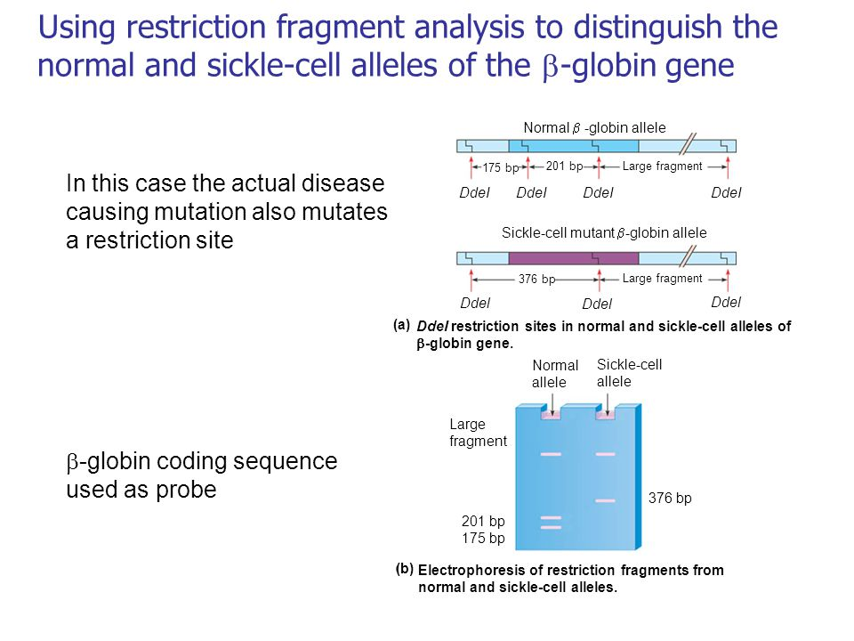 Using restriction fragment analysis to distinguish the normal and sickle-cell alleles of the  -globin gene Normal  -globin allele Sickle-cell mutant  -globin allele 175 bp 201 bpLarge fragment DdeI Ddel 376 bp Large fragment DdeI restriction sites in normal and sickle-cell alleles of  -globin gene.