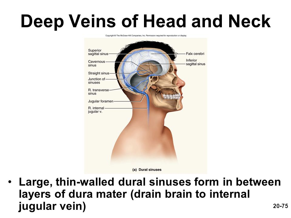 20-75 Deep Veins of Head and Neck Large, thin-walled dural sinuses form in between layers of dura mater (drain brain to internal jugular vein)