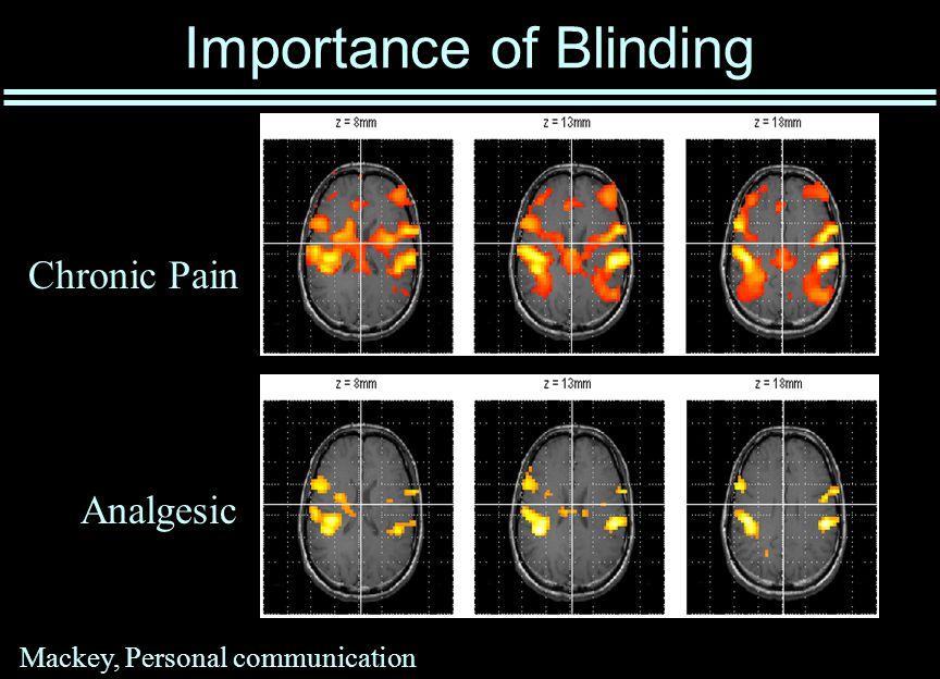 Importance of Blinding Mackey, Personal communication Chronic Pain Analgesic