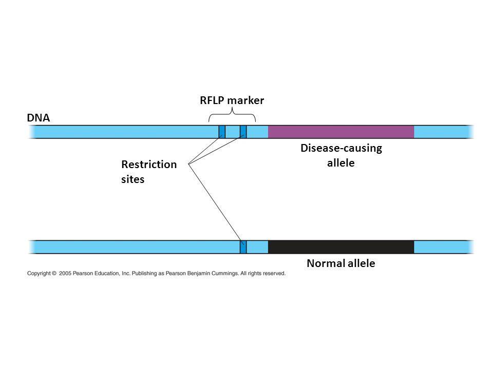 DNA RFLP marker Disease-causing allele Normal allele Restriction sites