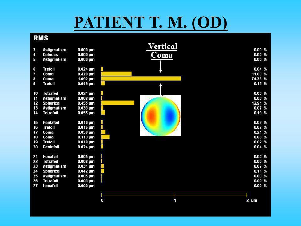 PATIENT T. M. (OD) Vertical Coma