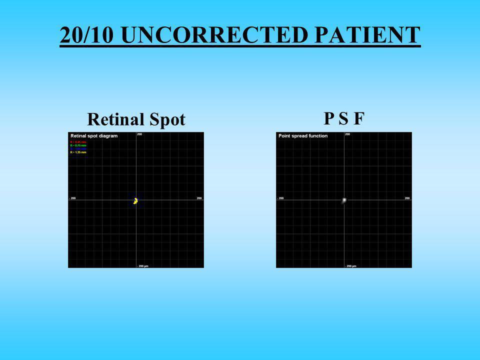 Retinal Spot P S F