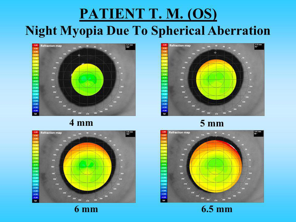PATIENT T. M. (OS) Night Myopia Due To Spherical Aberration 4 mm 5 mm 6 mm6.5 mm