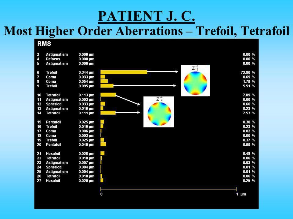 PATIENT J. C. Most Higher Order Aberrations – Trefoil, Tetrafoil