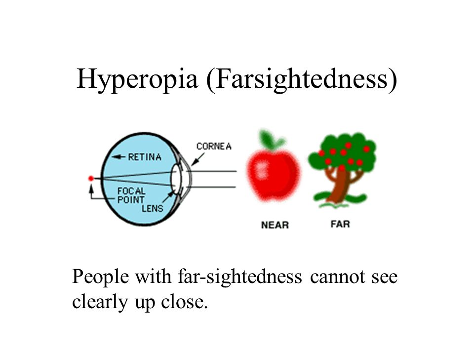 Myopia (Near-Sightedness) People with near-sightedness cannot see clearly at distance.