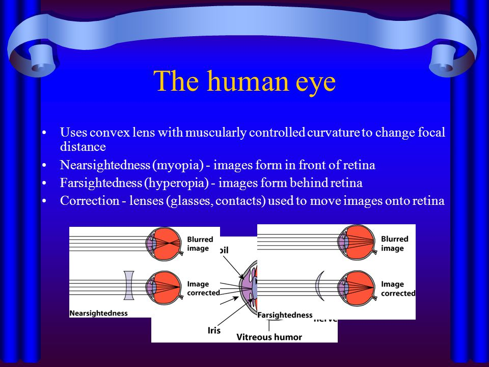 Hyperopia (Farsightedness) People with far-sightedness cannot see clearly up close.