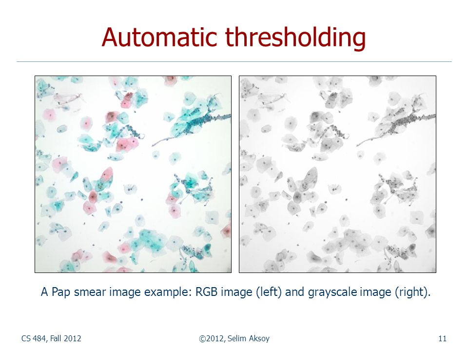 CS 484, Fall 2012©2012, Selim Aksoy11 Automatic thresholding A Pap smear image example: RGB image (left) and grayscale image (right).