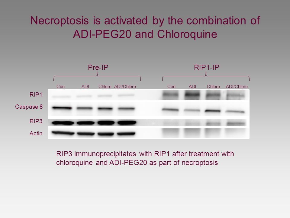 Necroptosis is activated by the combination of ADI-PEG20 and Chloroquine Pre-IP RIP1-IP Con ADI Chloro ADI/Chloro RIP1 Caspase 8 RIP3 Actin RIP3 immun