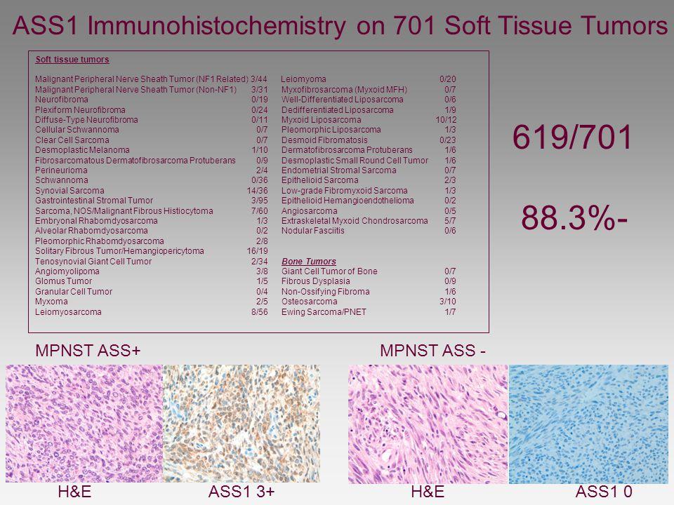 Soft tissue tumors Malignant Peripheral Nerve Sheath Tumor (NF1 Related) 3/44 Leiomyoma 0/20 Malignant Peripheral Nerve Sheath Tumor (Non-NF1) 3/31 Myxofibrosarcoma (Myxoid MFH) 0/7 Neurofibroma 0/19 Well-Differentiated Liposarcoma 0/6 Plexiform Neurofibroma 0/24 Dedifferentiated Liposarcoma 1/9 Diffuse-Type Neurofibroma 0/11 Myxoid Liposarcoma 10/12 Cellular Schwannoma 0/7 Pleomorphic Liposarcoma 1/3 Clear Cell Sarcoma 0/7 Desmoid Fibromatosis0/23 Desmoplastic Melanoma 1/10 Dermatofibrosarcoma Protuberans 1/6 Fibrosarcomatous Dermatofibrosarcoma Protuberans 0/9 Desmoplastic Small Round Cell Tumor 1/6 Perineurioma 2/4 Endometrial Stromal Sarcoma 0/7 Schwannoma 0/36 Epithelioid Sarcoma 2/3 Synovial Sarcoma 14/36 Low-grade Fibromyxoid Sarcoma 1/3 Gastrointestinal Stromal Tumor 3/95 Epithelioid Hemangioendothelioma 0/2 Sarcoma, NOS/Malignant Fibrous Histiocytoma 7/60 Angiosarcoma 0/5 Embryonal Rhabomdyosarcoma 1/3 Extraskeletal Myxoid Chondrosarcoma 5/7 Alveolar Rhabomdyosarcoma 0/2 Nodular Fasciitis 0/6 Pleomorphic Rhabomdyosarcoma 2/8 Solitary Fibrous Tumor/Hemangiopericytoma 16/19 Tenosynovial Giant Cell Tumor 2/34 Bone Tumors Angiomyolipoma 3/8 Giant Cell Tumor of Bone 0/7 Glomus Tumor 1/5 Fibrous Dysplasia 0/9 Granular Cell Tumor 0/4 Non-Ossifying Fibroma 1/6 Myxoma 2/5 Osteosarcoma3/10 Leiomyosarcoma 8/56 Ewing Sarcoma/PNET 1/7 H&E ASS1 3+ H&E ASS1 0 ASS1 Immunohistochemistry on 701 Soft Tissue Tumors MPNST ASS+ MPNST ASS - 619/701 88.3%-