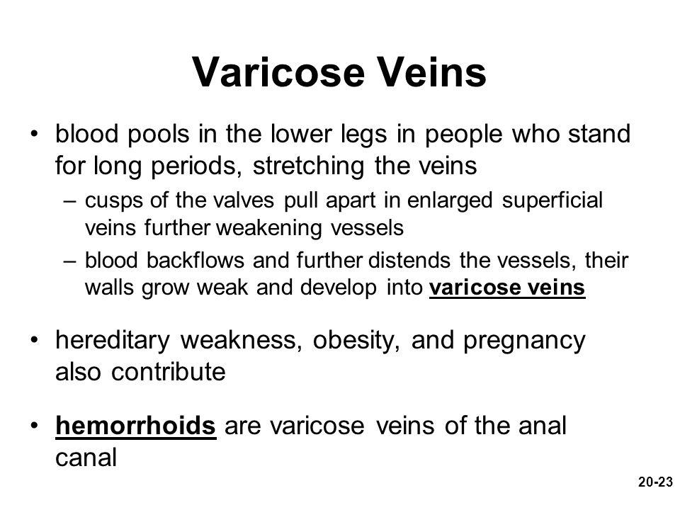 20-23 Varicose Veins blood pools in the lower legs in people who stand for long periods, stretching the veins –cusps of the valves pull apart in enlarged superficial veins further weakening vessels –blood backflows and further distends the vessels, their walls grow weak and develop into varicose veins hereditary weakness, obesity, and pregnancy also contribute hemorrhoids are varicose veins of the anal canal