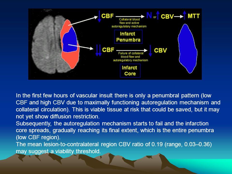 Complete AV block Ventricular tachycardia