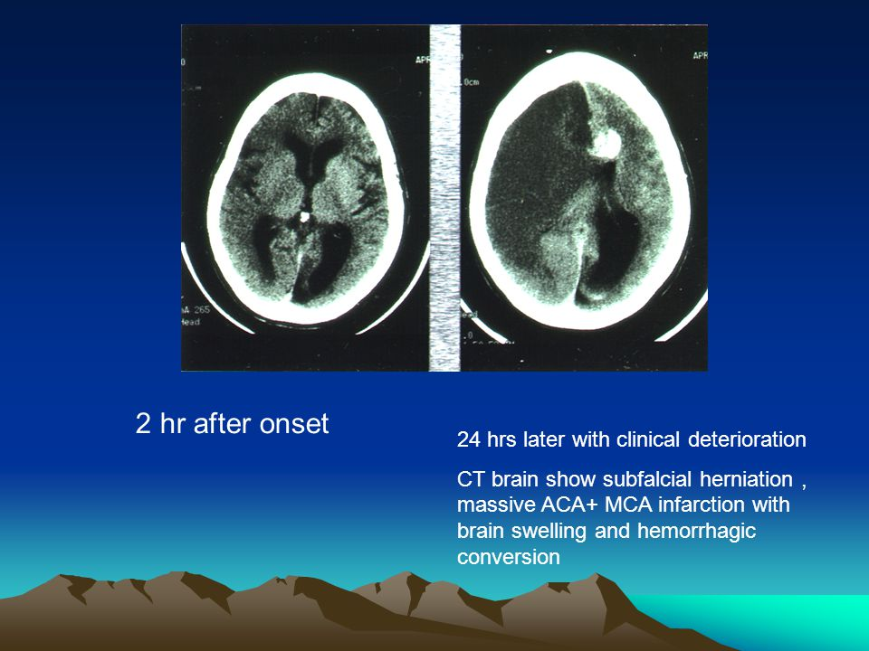 2 hr after onset 24 hrs later with clinical deterioration CT brain show subfalcial herniation, massive ACA+ MCA infarction with brain swelling and hem