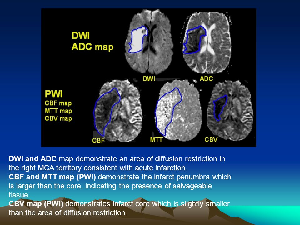 Right middle cerebral artery infarction