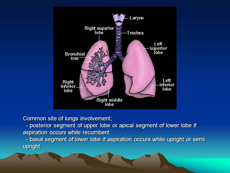 Common site of lungs involvement; - posterior segment of upper lobe or apical segment of lower lobe if aspiration occurs while recumbent - posterior s
