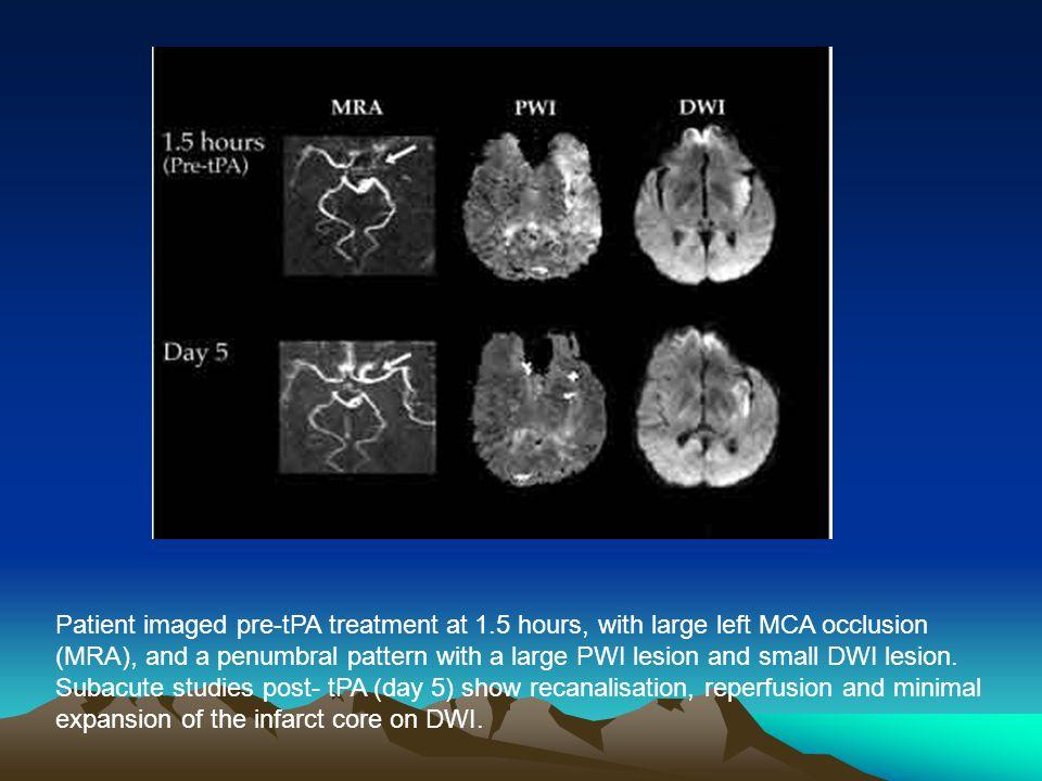 Ischemic stroke in middle cerebral artery territory.