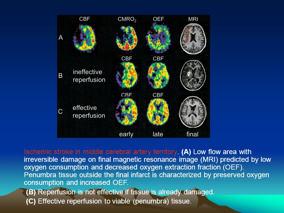 Ischemic stroke in middle cerebral artery territory. (A) Low flow area with irreversible damage on final magnetic resonance image (MRI) predicted by l