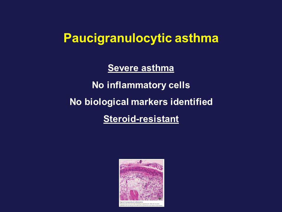 Paucigranulocytic asthma Severe asthma No inflammatory cells No biological markers identified Steroid-resistant