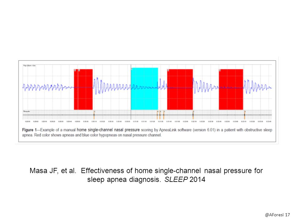 Masa JF, et al. Effectiveness of home single-channel nasal pressure for sleep apnea diagnosis.