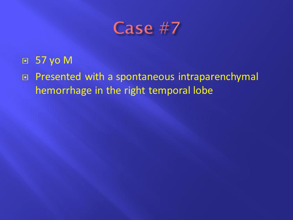  57 yo M  Presented with a spontaneous intraparenchymal hemorrhage in the right temporal lobe