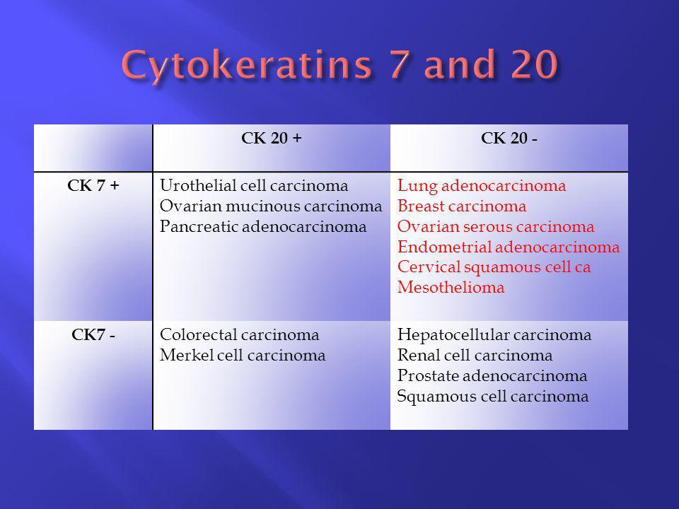 CK 20 +CK 20 - CK 7 + Urothelial cell carcinoma Ovarian mucinous carcinoma Pancreatic adenocarcinoma Lung adenocarcinoma Breast carcinoma Ovarian sero