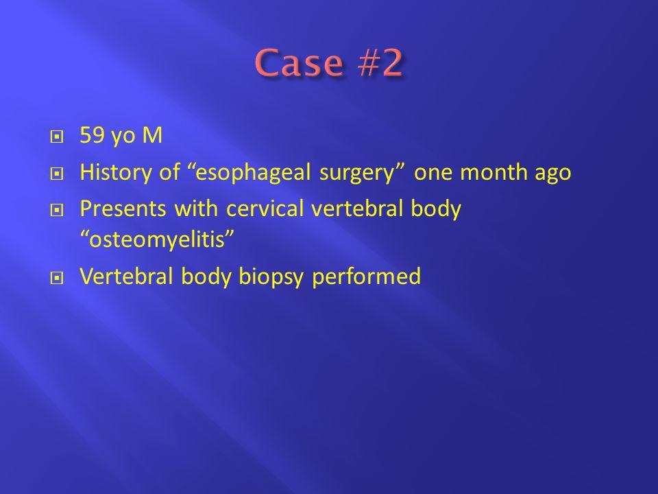  59 yo M  History of esophageal surgery one month ago  Presents with cervical vertebral body osteomyelitis  Vertebral body biopsy performed