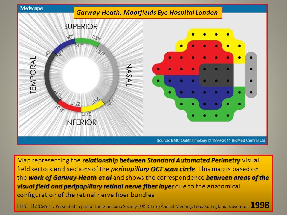 relationship between Standard Automated Perimetry OCT scan circle work of Garway-Heath et al between areas of the visual field and peripapillary retinal nerve fiber layer Map representing the relationship between Standard Automated Perimetry visual field sectors and sections of the peripapillary OCT scan circle.