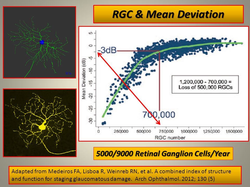 RGC & Mean Deviation 5 Adapted from Medeiros FA, Lisboa R, Weinreb RN, et al.