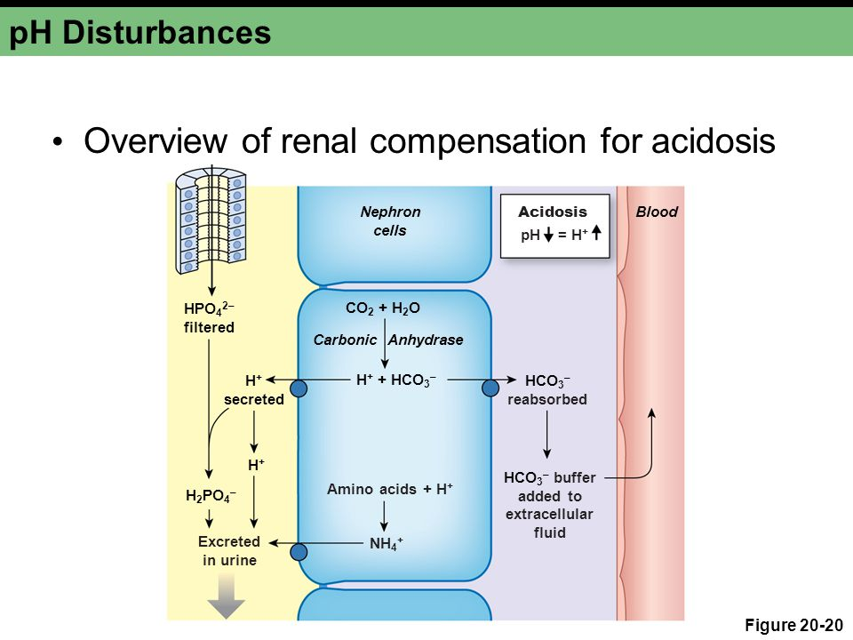 pH Disturbances Overview of renal compensation for acidosis Figure 20-20 CO 2 + H 2 O Carbonic Anhydrase Nephron cells Acidosis pH = H + HCO 3 – reabs