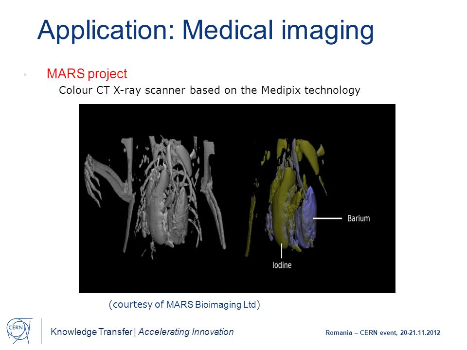 Knowledge Transfer | Accelerating Innovation Romania – CERN event, 20-21.11.2012 (courtesy of MARS Bioimaging Ltd ) MARS project Colour CT X-ray scanner based on the Medipix technology Application: Medical imaging