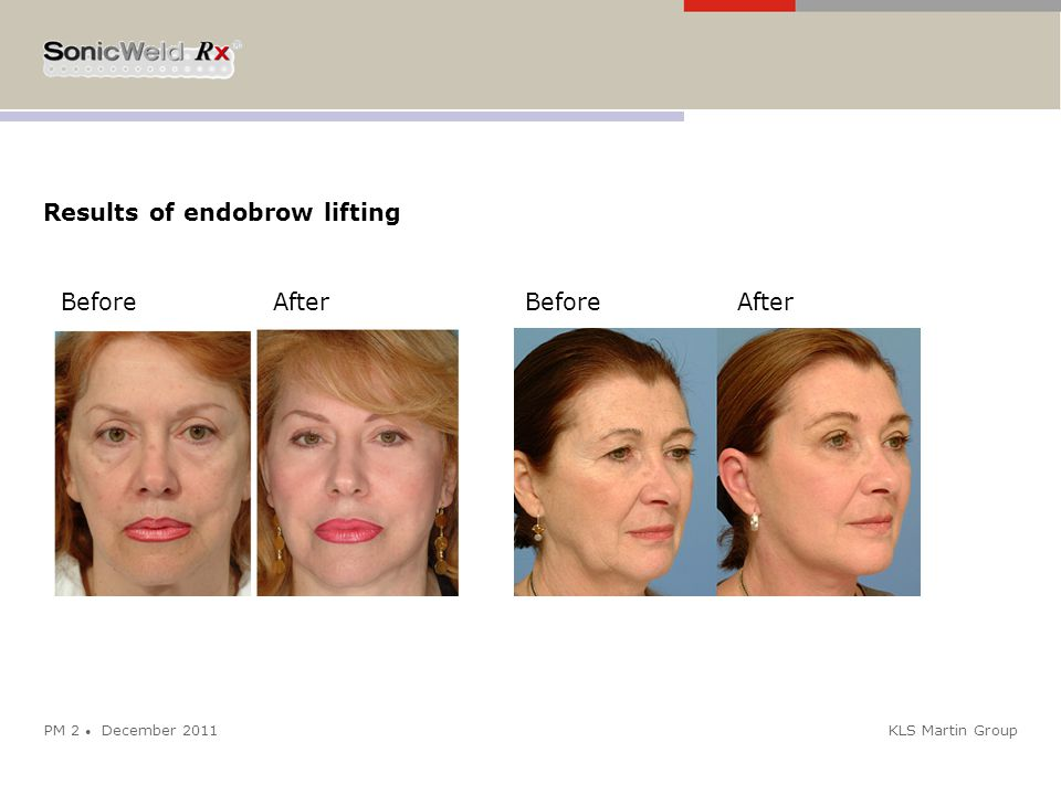 KLS Martin Group Results of endobrow lifting PM 2 ● December 2011 BeforeAfter