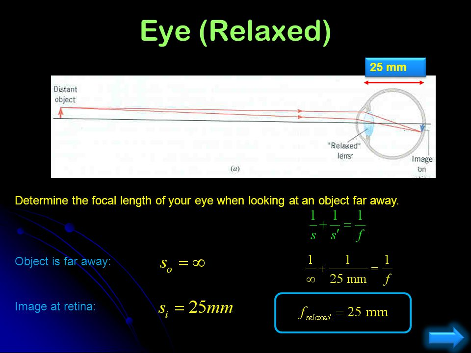 The Physics of Focusing the Eye Cornea n= 1.38 Lensn = 1.4 Vitreousn = 1.33 Which part of the eye does most of the light bending? 1) Lens2) Cornea3) R