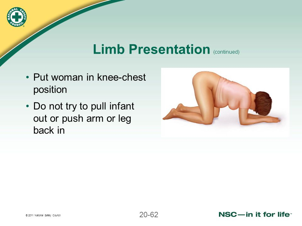 © 2011 National Safety Council 20-62 Limb Presentation (continued) Put woman in knee-chest position Do not try to pull infant out or push arm or leg b