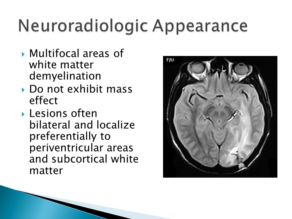  Multifocal areas of white matter demyelination  Do not exhibit mass effect  Lesions often bilateral and localize preferentially to periventricular