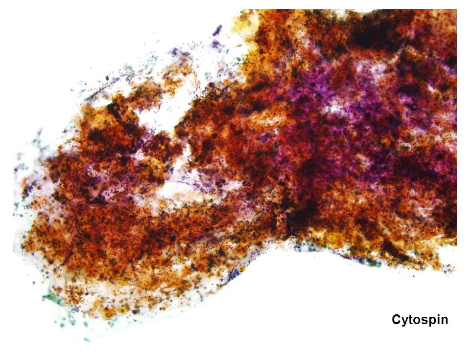 Cytospin