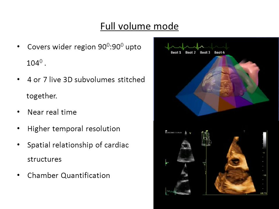 Full volume mode Covers wider region 90 0 :90 0 upto 104 0. 4 or 7 live 3D subvolumes stitched together. Near real time Higher temporal resolution Spa