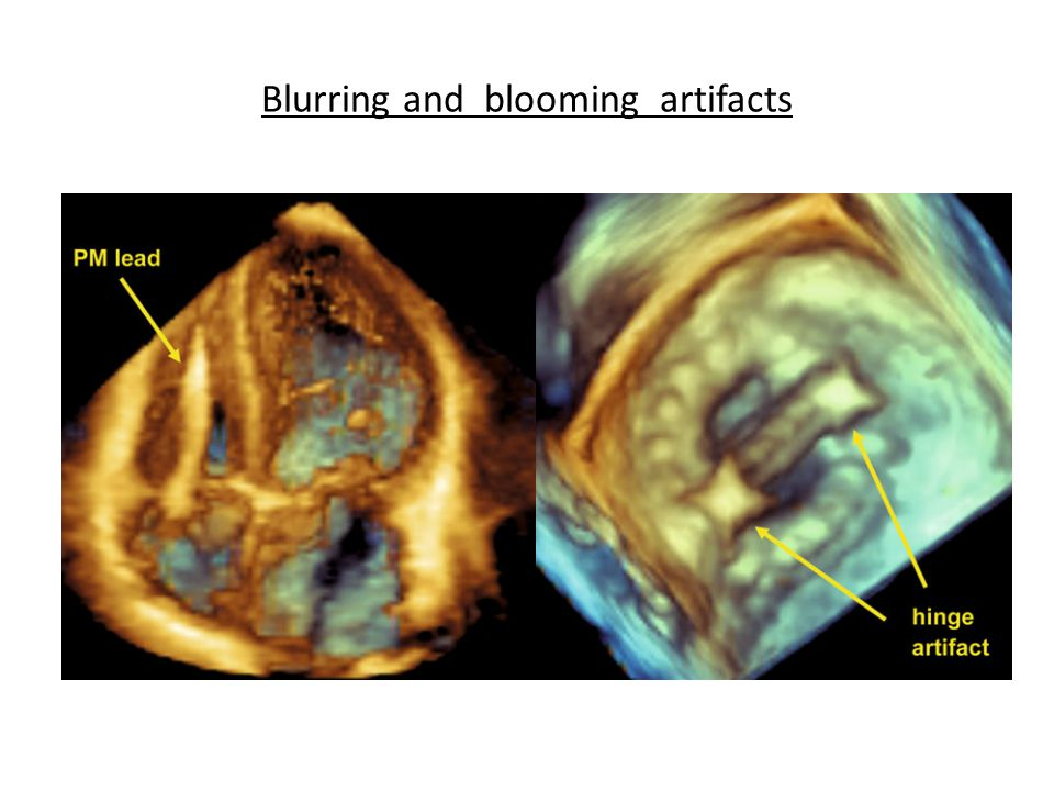 Blurring and blooming artifacts