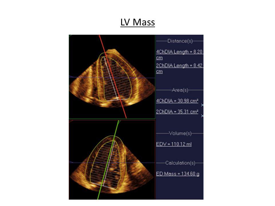 LV Mass