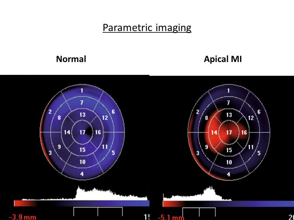 Parametric imaging NormalApical MI
