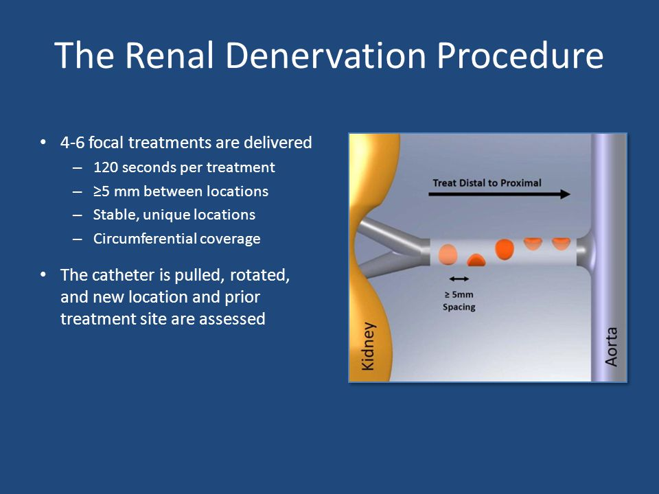 The Renal Denervation Procedure 4-6 focal treatments are delivered – 120 seconds per treatment – ≥5 mm between locations – Stable, unique locations – Circumferential coverage The catheter is pulled, rotated, and new location and prior treatment site are assessed