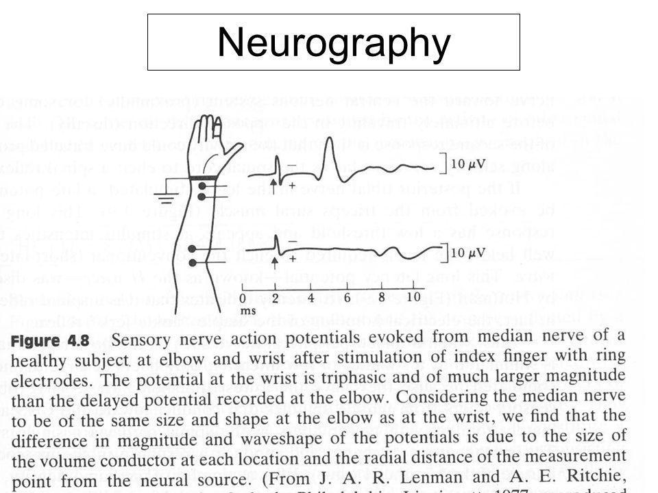 Fysisk institutt - Rikshospitalet11 FYS 4250 Neurography