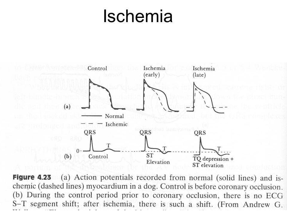 Fysisk institutt - Rikshospitalet25 FYS 4250 Ischemia