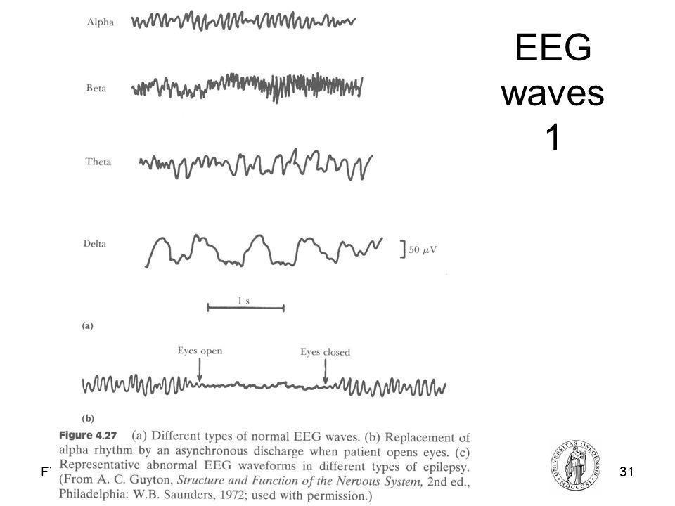 Fysisk institutt - Rikshospitalet31 FYS 4250 EEG waves 1 FYS4250Fysisk institutt - Rikshospitalet31