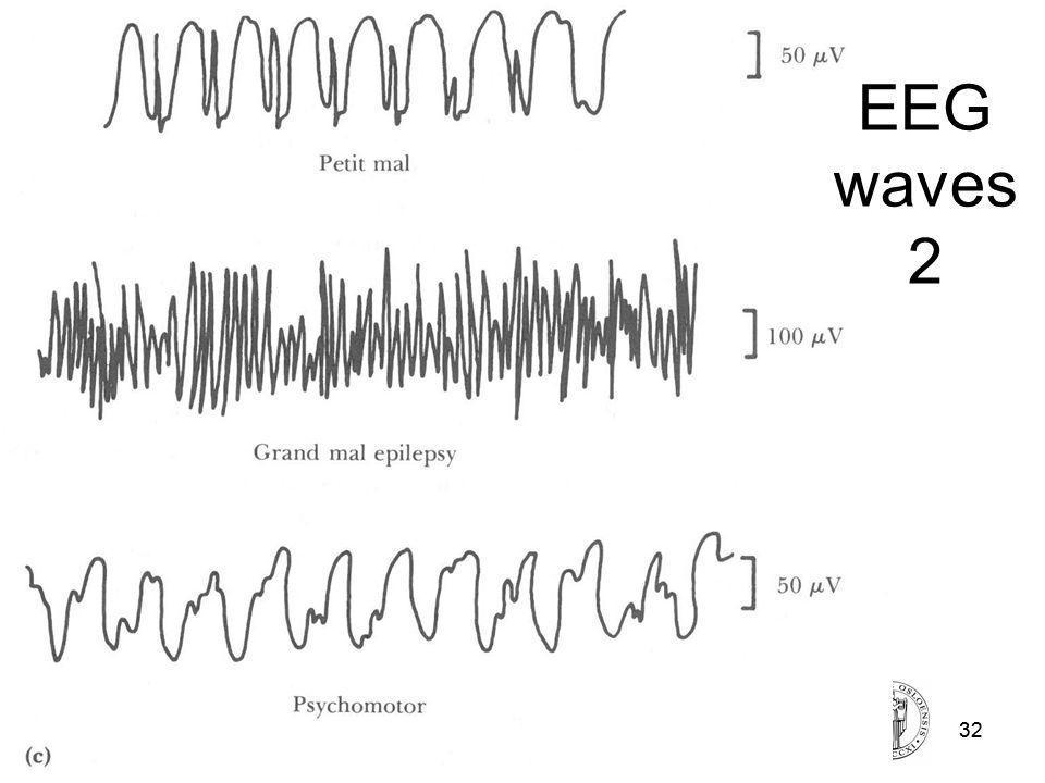 Fysisk institutt - Rikshospitalet32 FYS 4250 Fysisk institutt - Rikshospitalet32 EEG waves 2