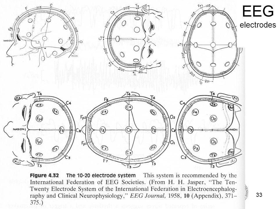 Fysisk institutt - Rikshospitalet33 FYS 4250 EEG electrodes